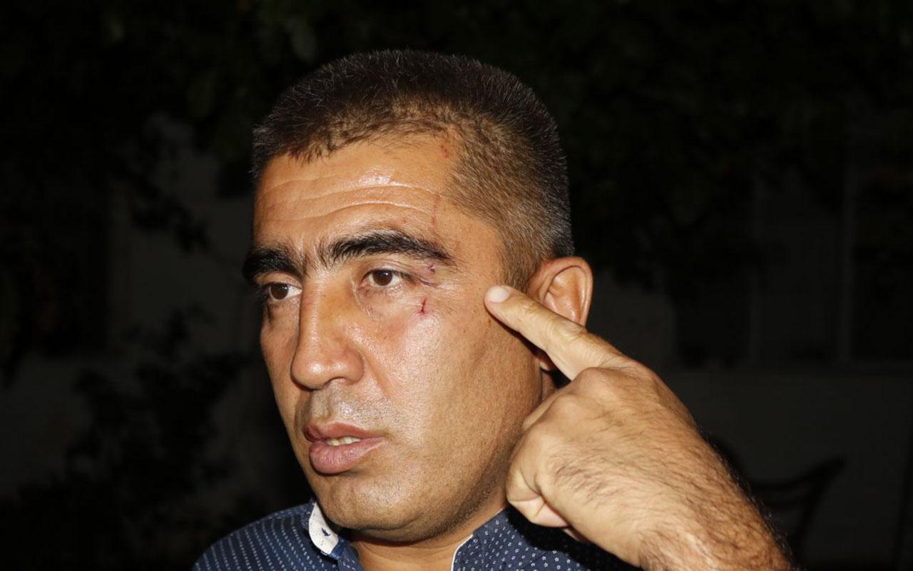Antalya'lı bir aile motosikletli grubun saldırısına uğradı!